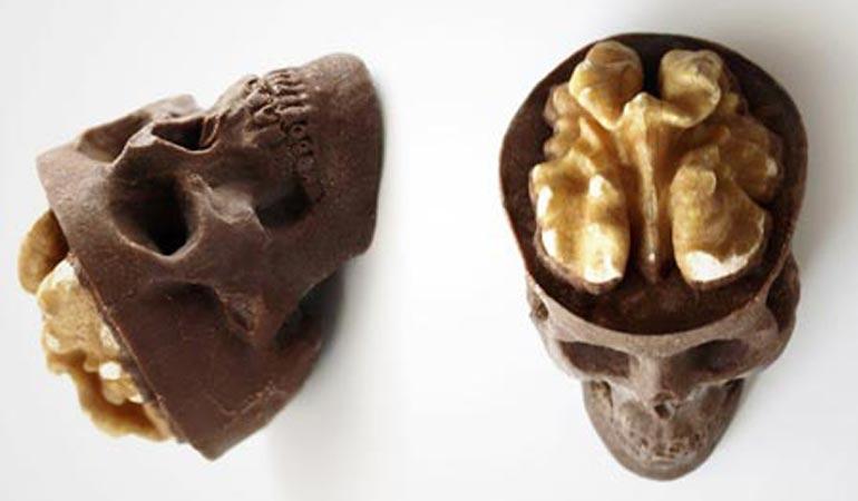 شکلات.